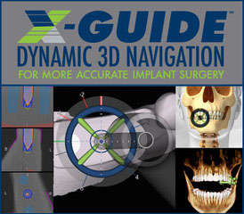 X-Guide logo and collage of X-guide diagrams