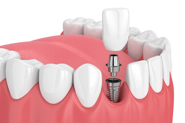 Diagram of a single dental implant